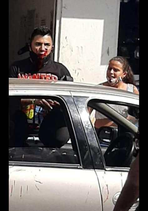 En Cali,al actor Mauro Bastidas lo atracan y le disparan en el rostro con arma de fogueo