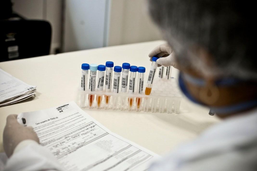 Exame RT-PCR Covid