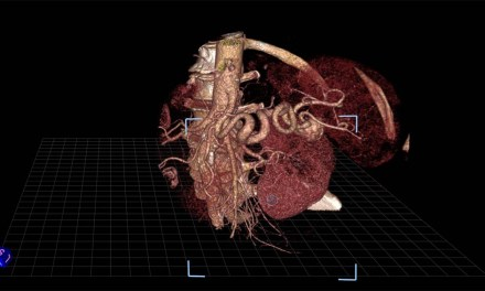 Interactive virtual reality enhances physicians' treatment planning of complex conditions