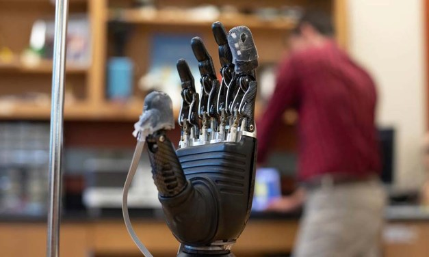 Bringing a human touch to modern prosthetics