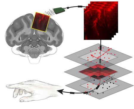 Reading Minds with Ultrasound: A Less-Invasive Technique to Decode the Brain's Intentions