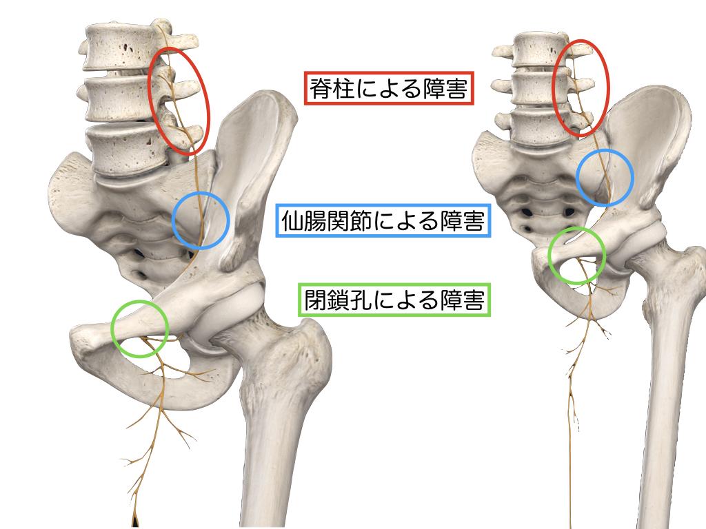 閉鎖神経の絞扼部位.001