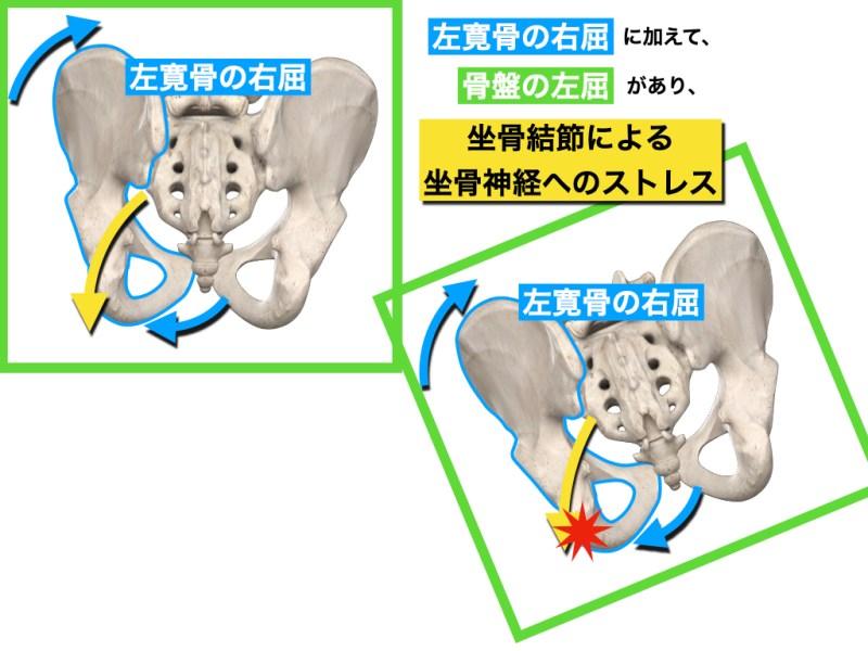 坐骨神経障害の一例