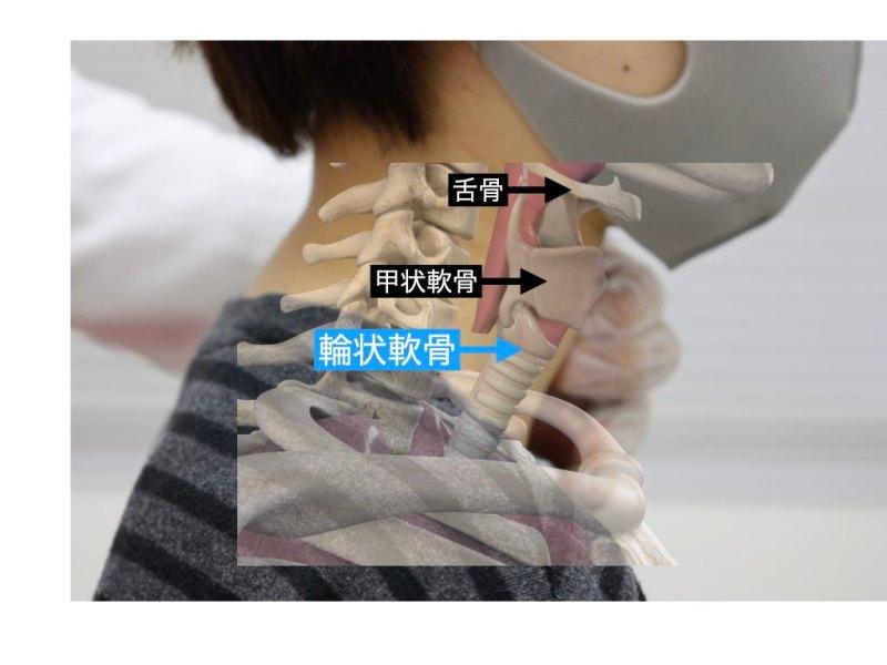 声帯の治療 輪状軟骨