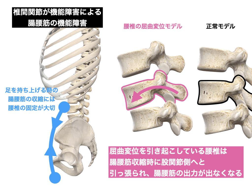 腰椎と腸腰筋