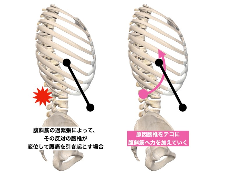腹斜筋と腰椎 2