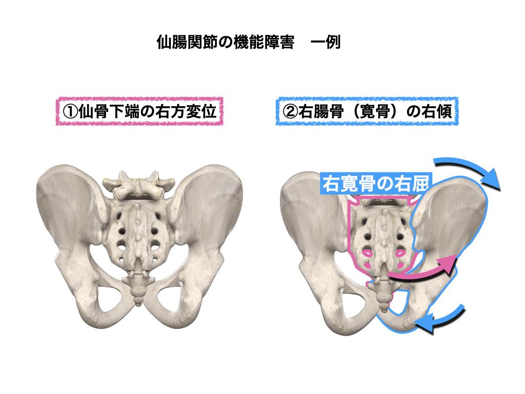 仙腸関節の障害