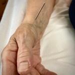 agopuntura rizartrosi