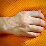 agopuntura per disturbi articolazioni
