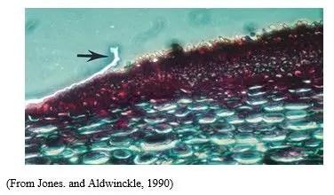 (شكل رقم 2): الجراثيم كونيدية المتكونة على البقع المتكشفة على الأوراق  (قطاع عرضي في ورقة مصابة)
