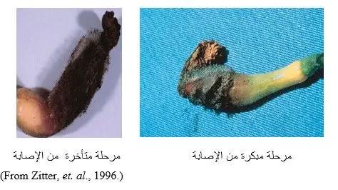 شكل رقم (1) الأعراض على ثمرة الكوسة