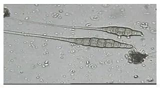 شكل رقم (1): جراثيم الفطر الترناريا تحت المجهر
