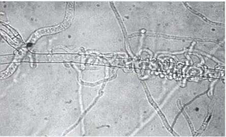 شكل4: التطفل الفطري بين فطرTrichoderma و Rhizoctonia solani