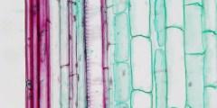 مكونات النسيج الخشبي Xylem structure