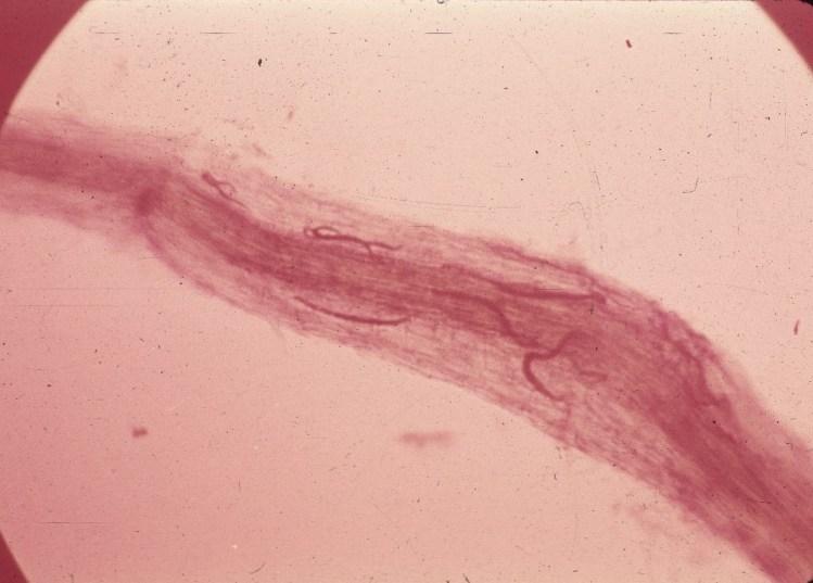 Nematoide das lesões radiculares