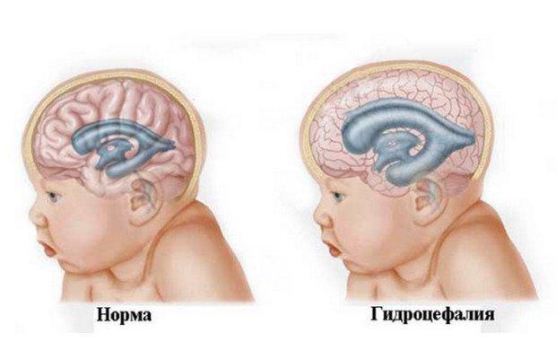 Перинатальная постгипоксическая энцефалопатия у новорожденных. Перинатальная энцефалопатия: развитие, проявления, диагностика, как лечить, прогноз
