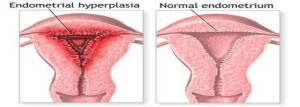 Pengobatan Hiperplasia endometrium