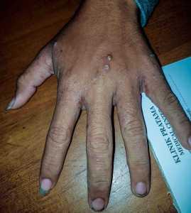 daerah scabies yang gatal timbul bintik bernanah, kebersihan diri pasien kurang jika dililhat dari kukunya