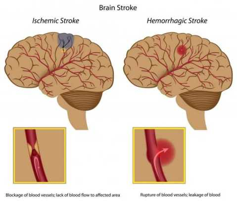 Stroke Perdarahan (Hemorrhagic) dan Stroke Sumbatan (Ischemic)