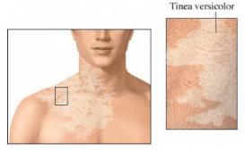 Tinea Versikolor/Pitiriasis Versikolor atau Panu