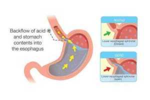 Pengobatan Refluks Gastroesofageal
