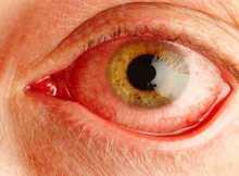Mata Kering/Dry eye : Gejala, Diagnosis dan Pengobatan