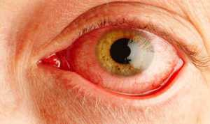pengobatan dry eye atau mata kering