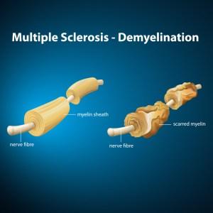 Pengobatan Multipel Sklerosis