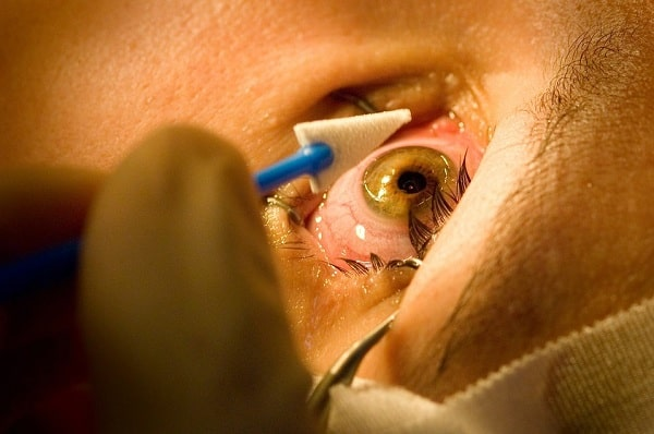 LASIK FAQs: Is Eye Surgery Right for You?