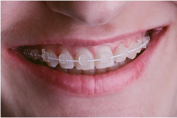 Different Types of Braces