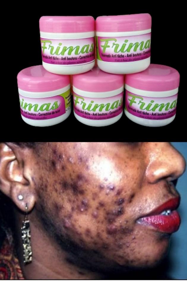 FRIMAS gamme PLUS est un produit fait à base de plantes purement naturelles qui traite les défauts de la peau comme les vergetures, les taches noirs, les boutons.... etc 2 semaines d'utilisation, vous verrez déjà la disparition des rides , tâches sur votre visage ou peau