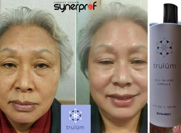 Jual Trulum Synergy Skincare Resmi di Puteri Betung