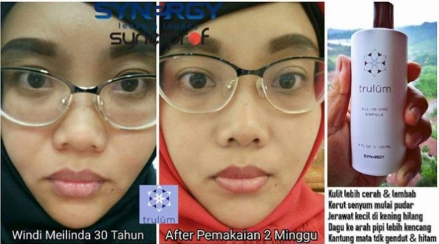 jual Trulum Skincare synergy asli di Lhokseumawe Aceh