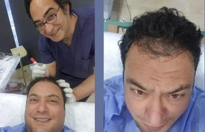 مراد مكرم يخضع لعملية زراعة شعر ويهرب من الصلع