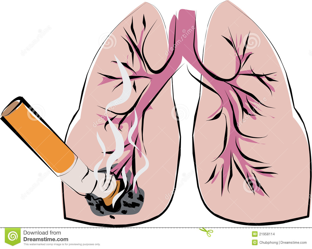 مصير مريض سرطان الرئة
