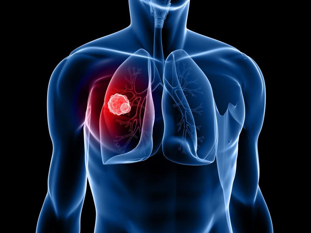 كيف يتم تشخيص سرطان الرئة