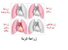 زراعة الرئة