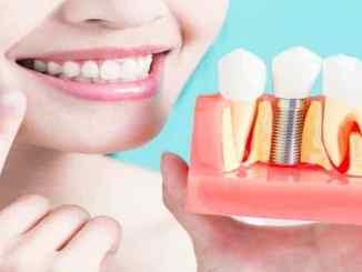 İmplant diş nedir, yapımı ne kadar sürer?
