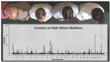 SALUD: Descubiertos los 287 genes que provocan la calvicie