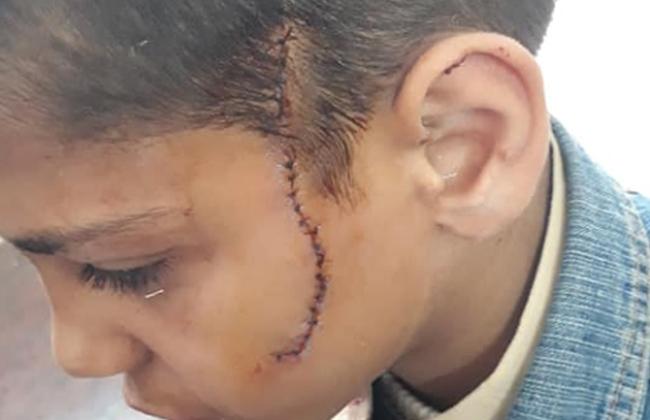 تلميذ يصيب زميله بـ30 غرزة في وجهه بالمرج