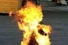 رفضت تعمل خادمة فأشعل زوجها النار بها