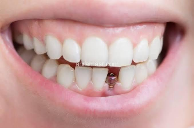 شادي سمير يُوضح هل يُمكن زراعة الأسنان خلال نهار رمضان ؟