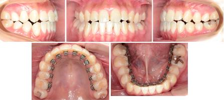 治療例No.234 開咬 下顎前突 舌側矯正のアイ矯正歯科クリニック