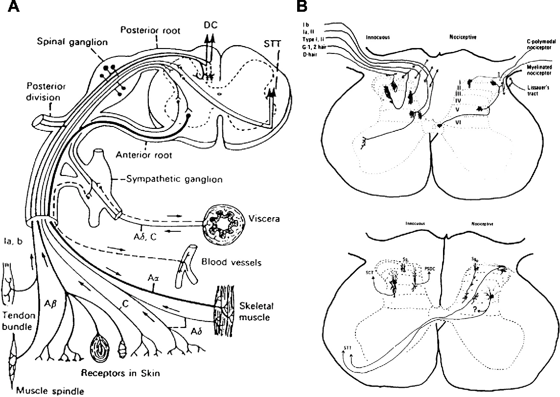 Figure 1 From Dorsal Root Entry Zone Lesion Midline