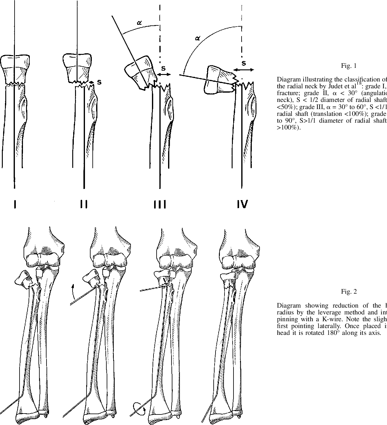 Figure 1 From Fractures Of The Neck Of The Radius In