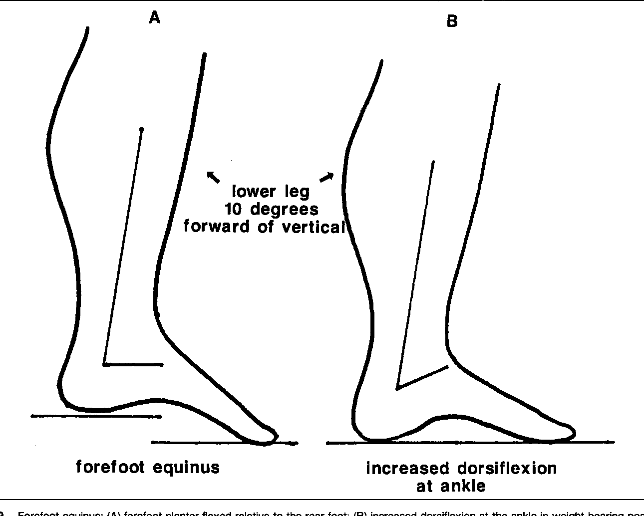 Figure 9 From Pathomechanics Of Structural Foot