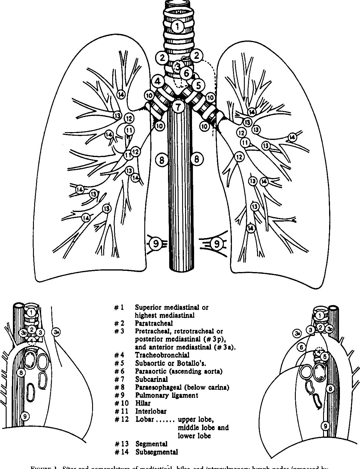 Figure 1 From Mediastinal Spread Of Metastatic Lymph Nodes