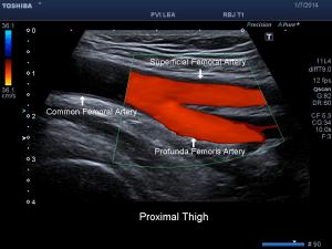 Peripheral Arterial Ultrasound in Clearwater FL