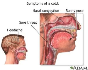 Common cold  ADAM Interactive Anatomy  Encyclopedia