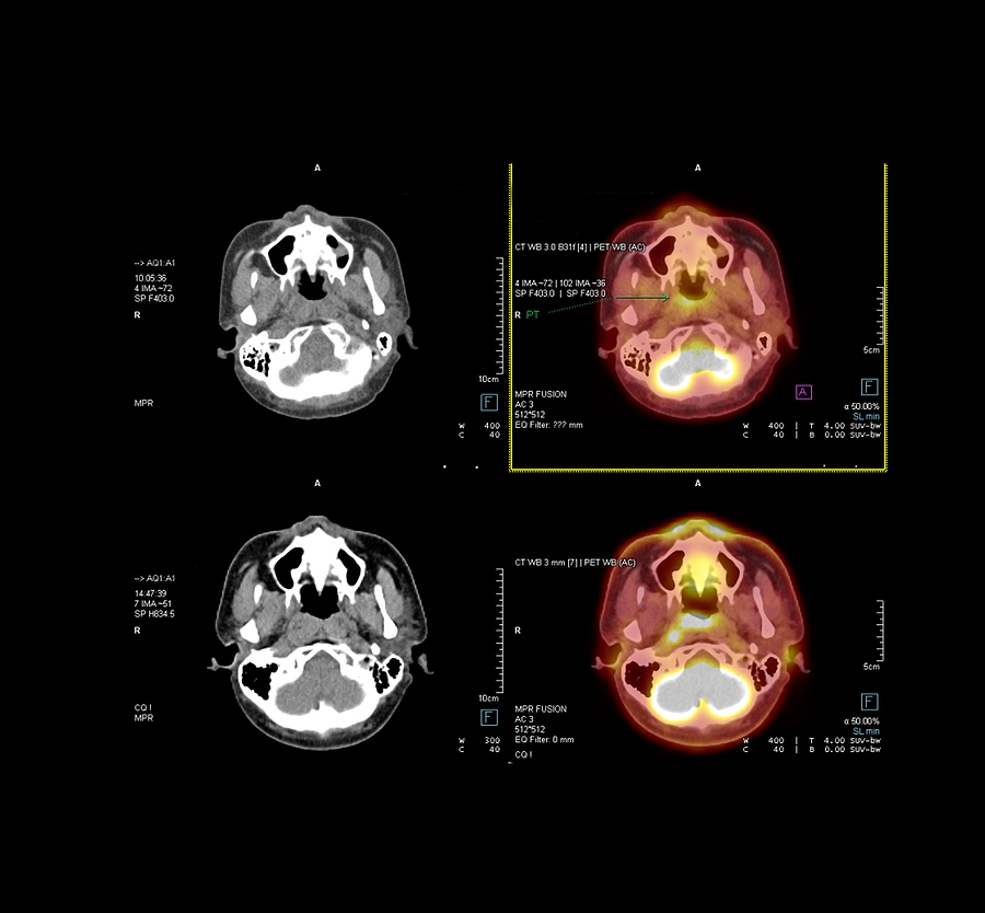 identifying brain cancers with AI